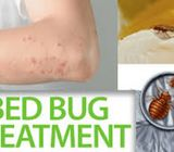 Professional Bed Bugs Treatment